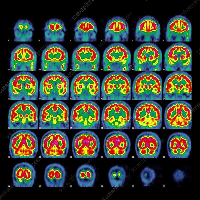 Normal brain activity, PET scans