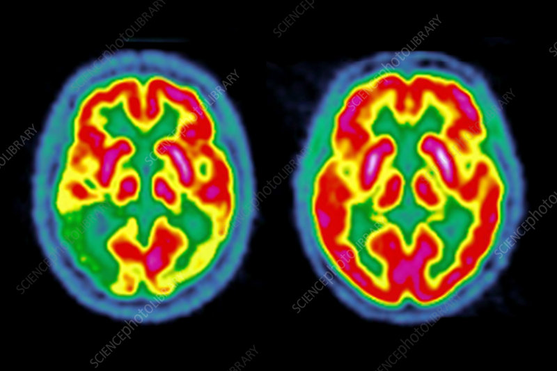 Brain activity in Benson's syndrome, PET scans