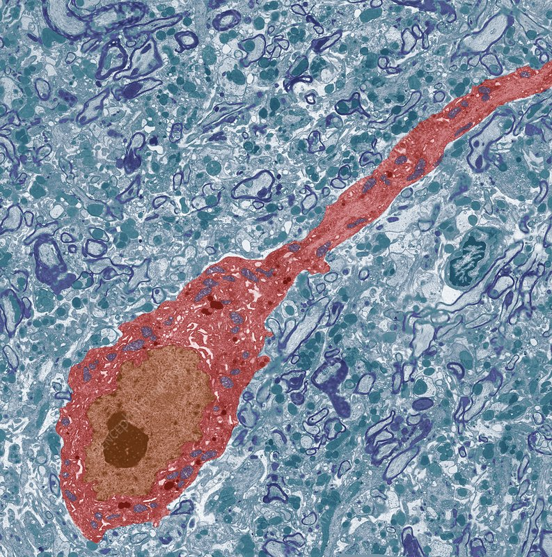 Neurone, TEM