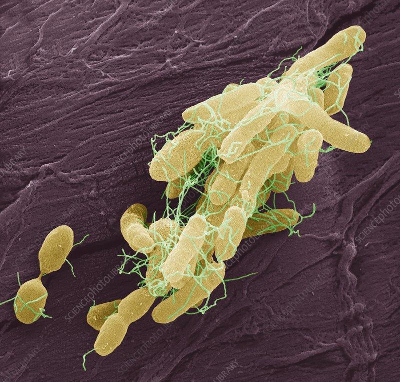 Salmonella bacteria, SEM