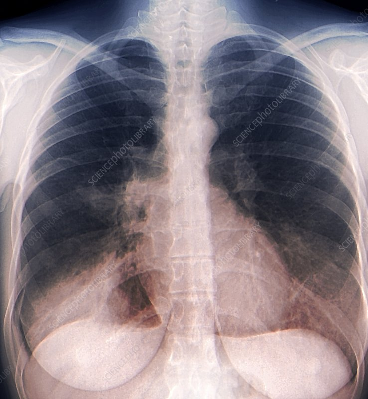 Chest infection, X-ray