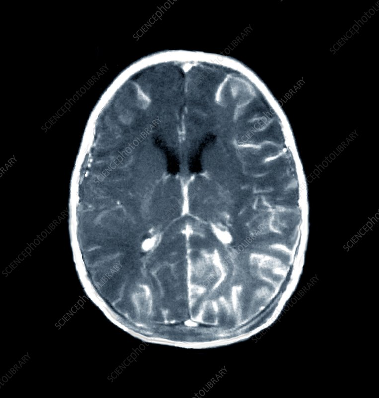 Brain in meningitis, CT scan
