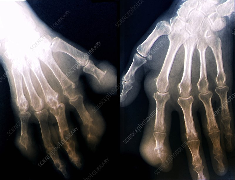 Gout, X-ray