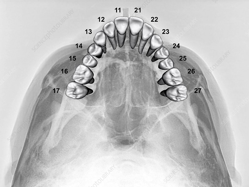 Normal teeth, 3D CBCT scan