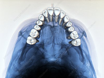 Dental arch in thumb sucking, X-ray