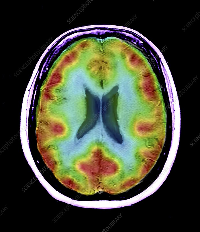 Normal brain blood flow, MRI and SPECT