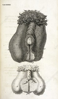 Picture of hermaphrodite sex organs