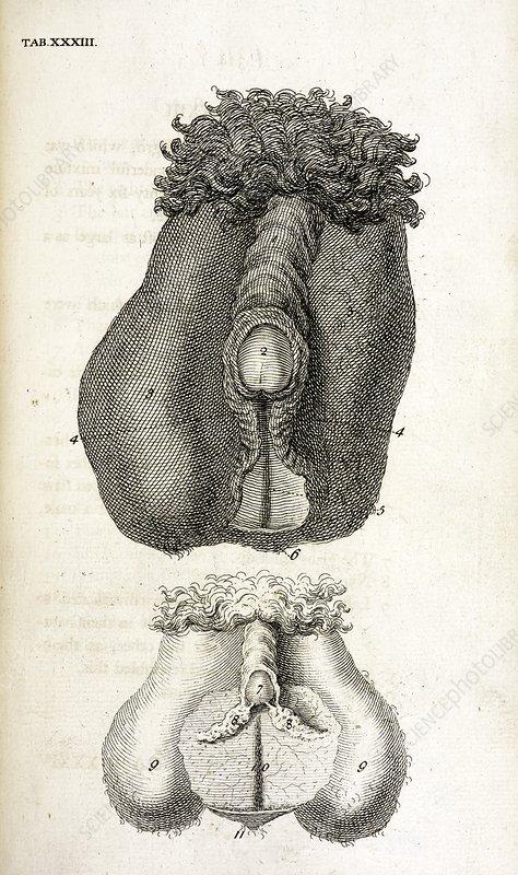 Hermaphrodite sex organ