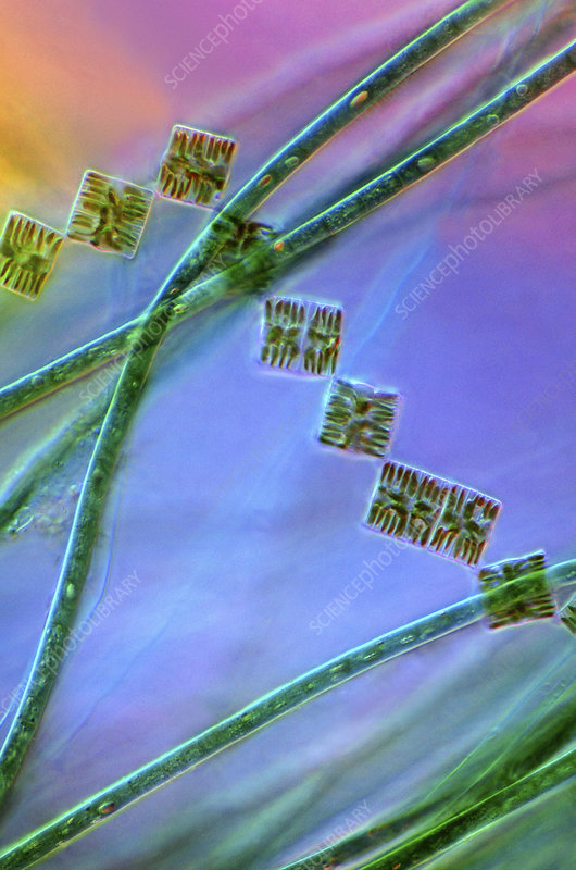 Diatoms and cyanobacteria, micrograph