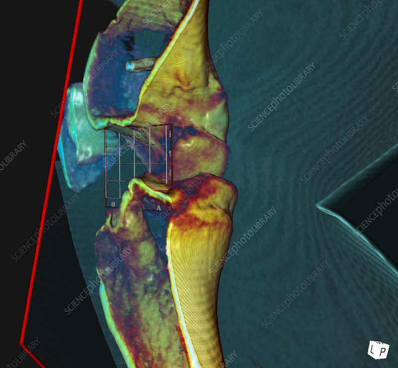 Knee ligament surgery, 3D CT scan