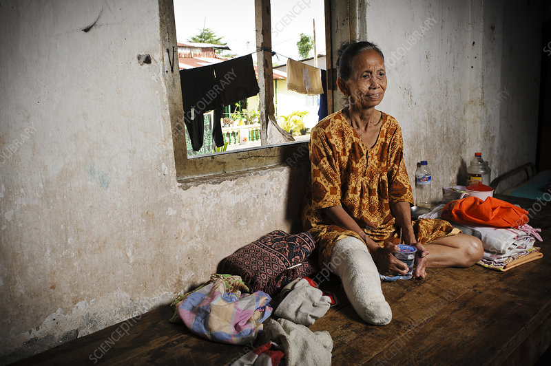 Elderly woman with leprosy, Indonesia