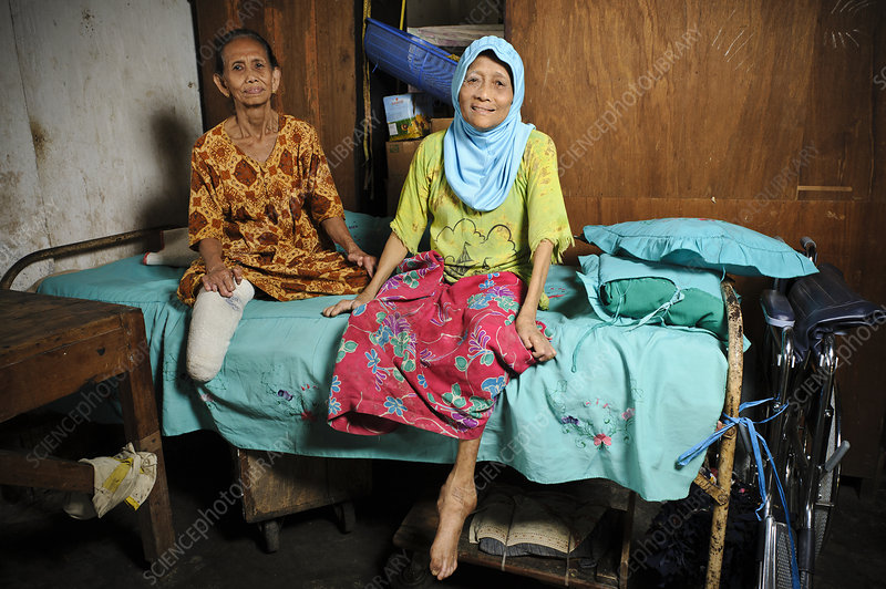 Elderly women with leprosy, Indonesia