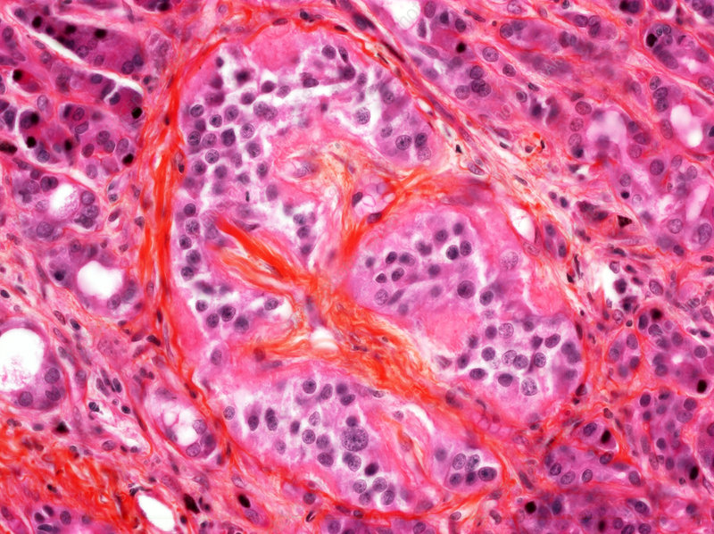 Amyloidosis in diabetes, light micrograph