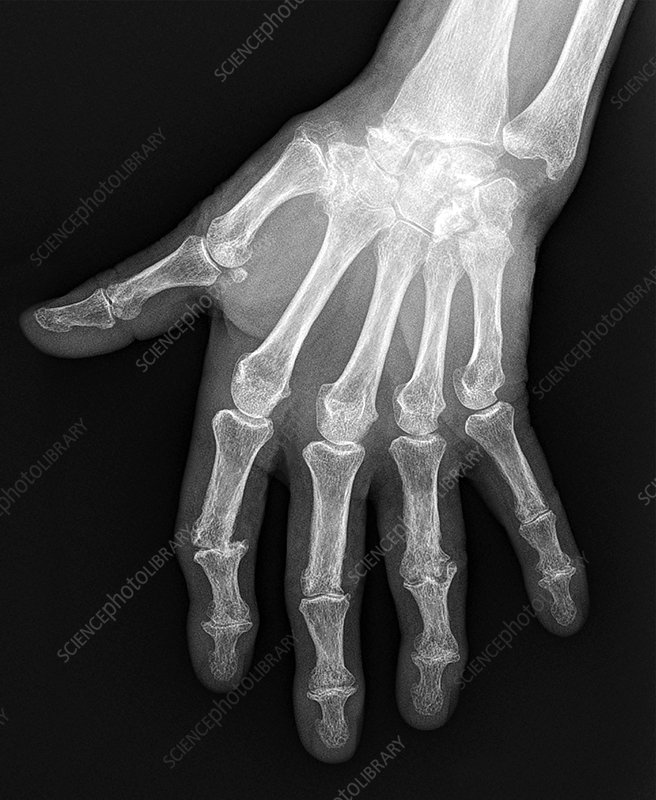 Arthritic hand, X-ray