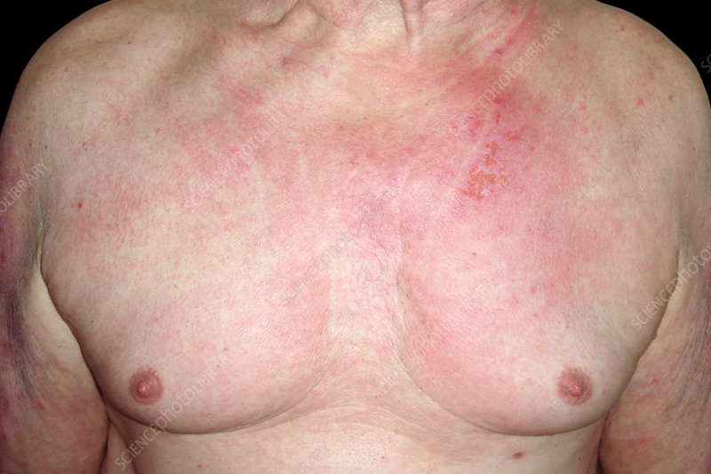 Skin rash in dermatomyositis
