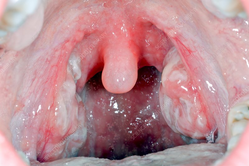 Streptococcal tonsillitis