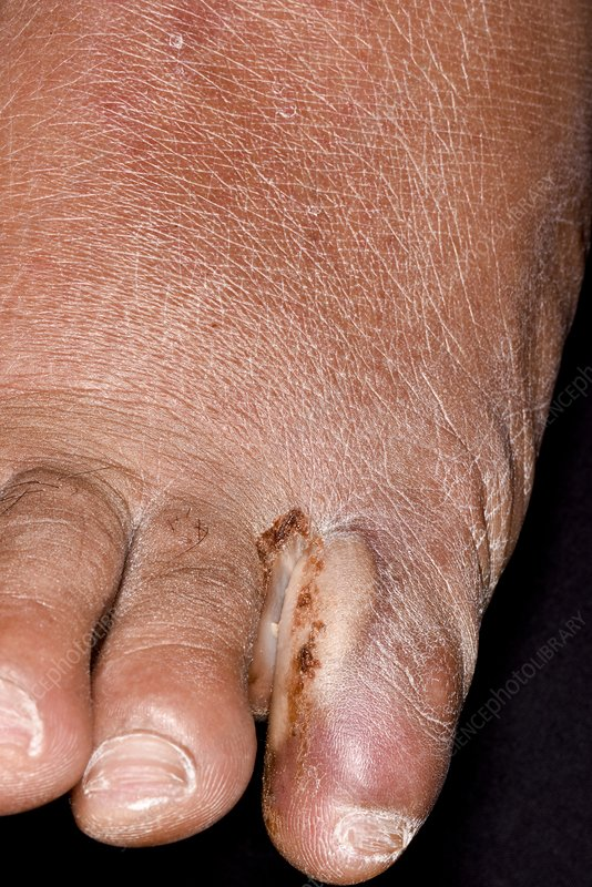 Athlete's foot toe infection in diabetes