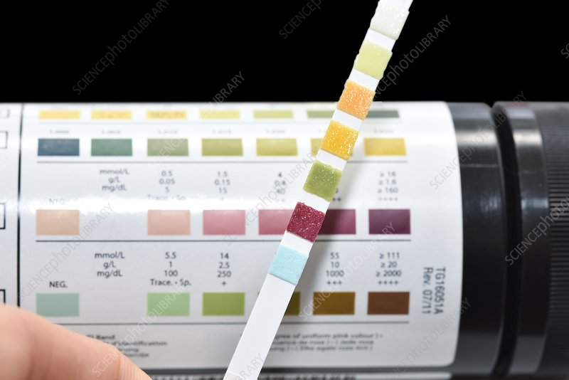 Urine test strip showing ketones