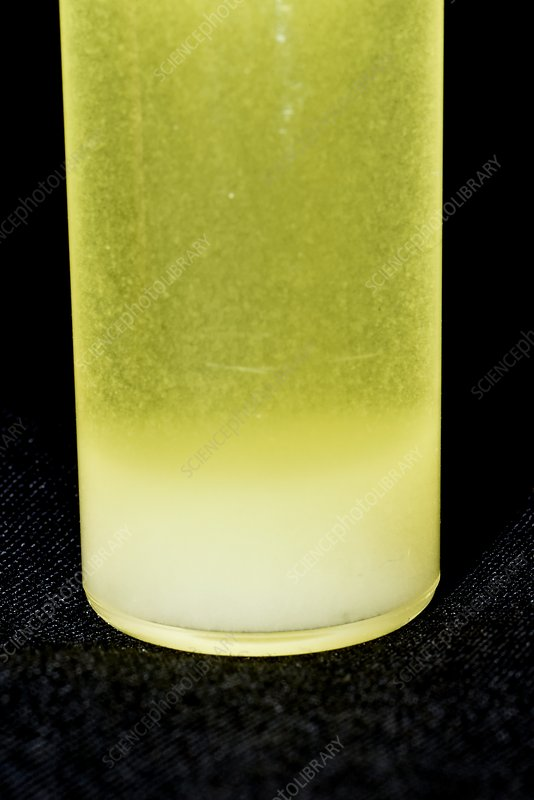 White blood cells in urine sample