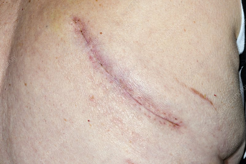 Lung cancer removal scar