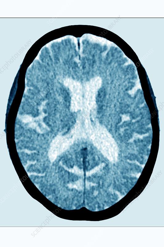 Cerebral atrophy, ct scan