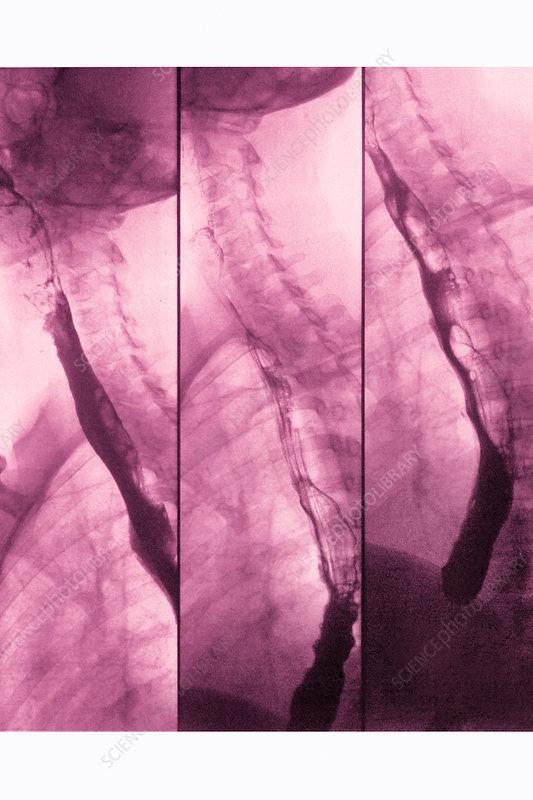 Oesophagus, x-ray