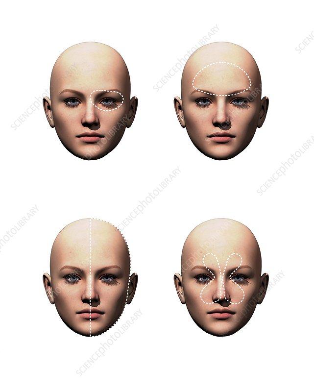 Headache types, illustration