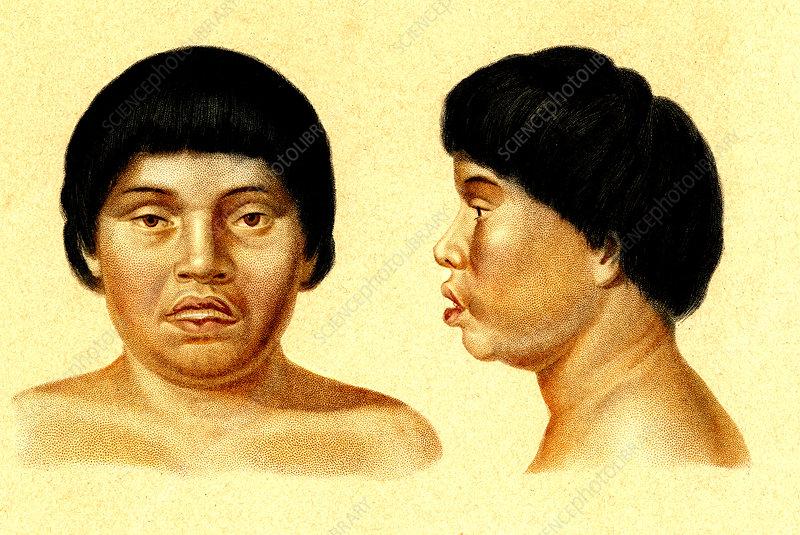Botocudo woman, 19th Century illustration