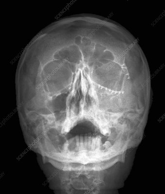 Fixed skull fractures, X-ray