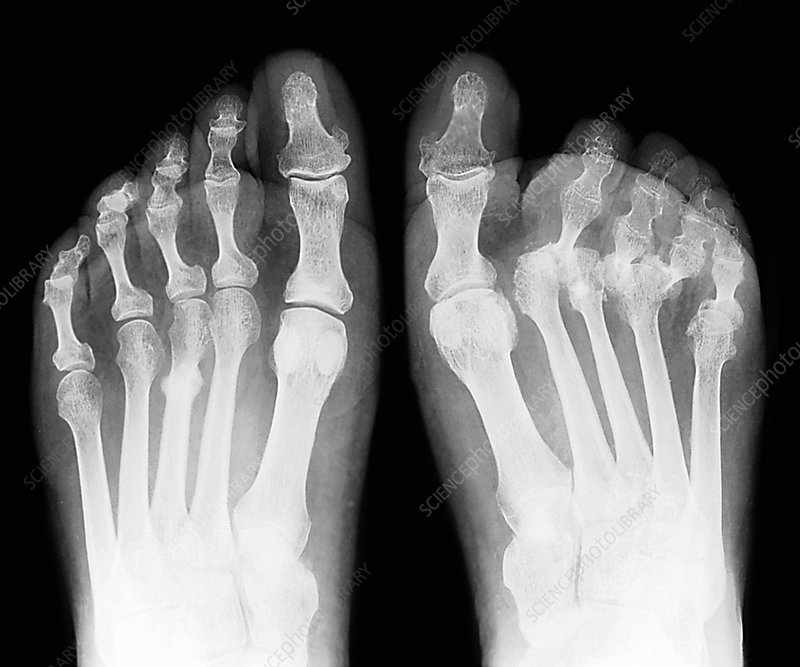 Rheumatoid arthritis of the feet, X-ray - Stock Image C026/9950 ...
