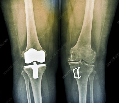 Knees after corrective surgery, X-ray