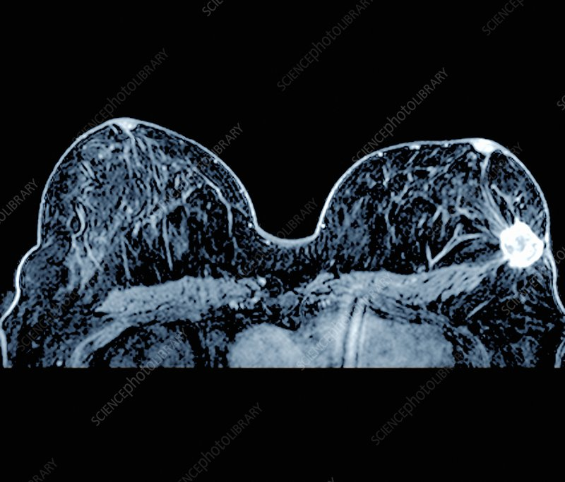 Breast Cancer Mri Scan Stock Image C026 9992 Science Photo