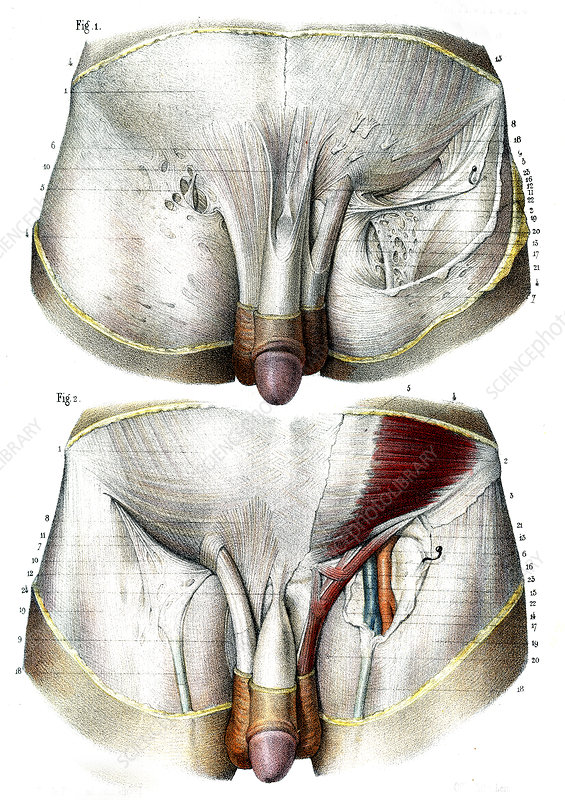 Male groin anatomy, illustrations - Stock Image C027/0009 - Science ...