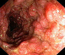 Inflammatory polyps in ulcerative colitis