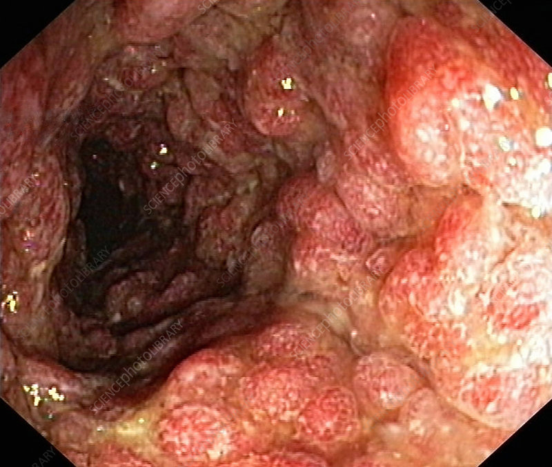 Inflammatory Polyps In Ulcerative Colitis Stock Image