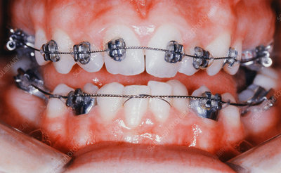 Braces Bonded to Teeth