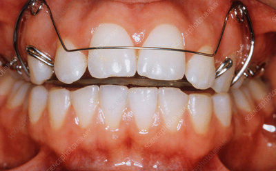Upper Brace for Incisors