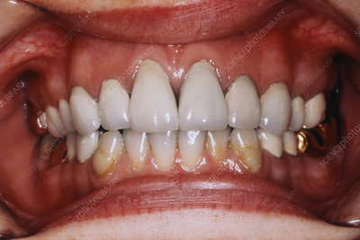Occlusal Gold Crowns