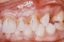 Chromogenic Bacteria and Gingivitis