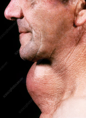 Man with goiter