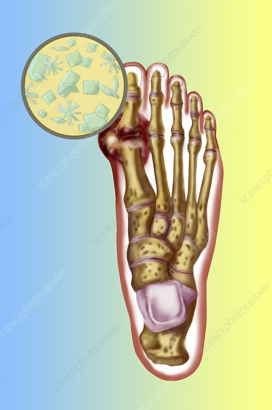 Foot With Gout Stock Image C027 0720 Science Photo Library
