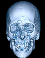 Enhanced 3D CT of Severe Facial Fractures