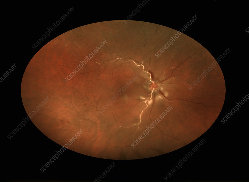 Central Retinal Artery Occlusion - Stock Image - C027/1458 ...