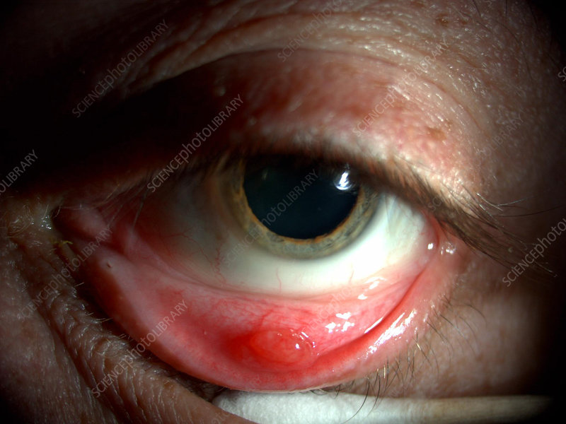 Conjunctival Cyst - Stock Image C027/1493 - Science Photo ...