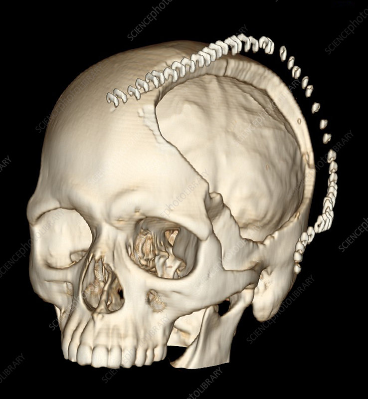 decompressive craniotomy for stroke stock image c027 1677