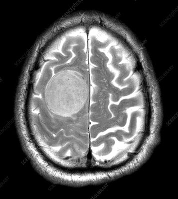 Large Meningioma on MRI