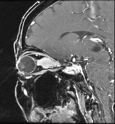 Optic Sheath Meningioma, MRI