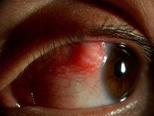 Episcleral Nodule in Eye