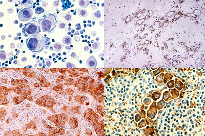 Breast Cancer Cells, Composite