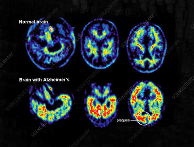 Normal and Alzheimer Brains, PET Scans
